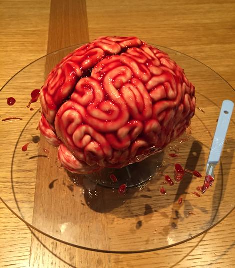 Specimen A: Fresh human brain!